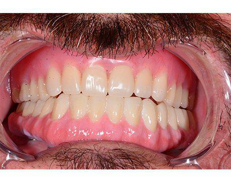 male patient with dentures